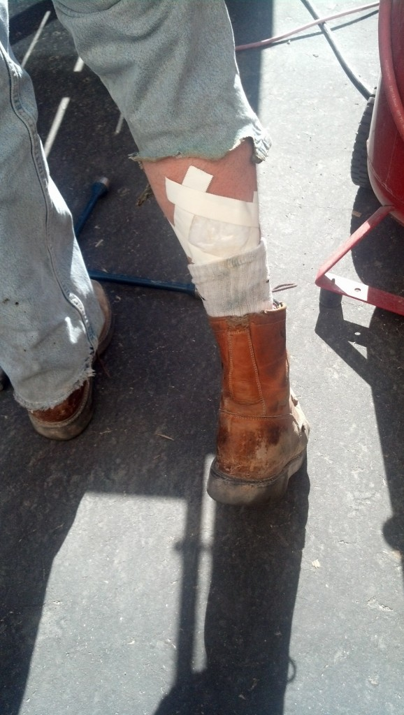 Dad also happened to almost burn his leg off... he was welding with his legs under the trailer, had conciously decided not to use the fire shield blanket and caught his pants on fire... He didn't notice it at first