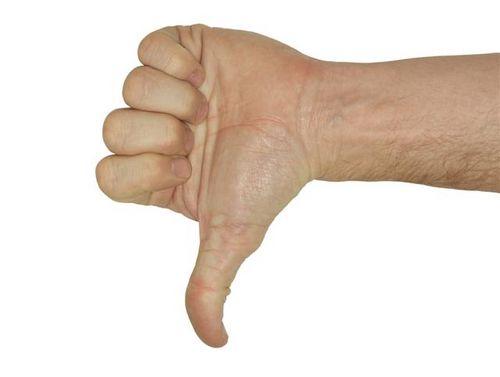 thumbs-down2